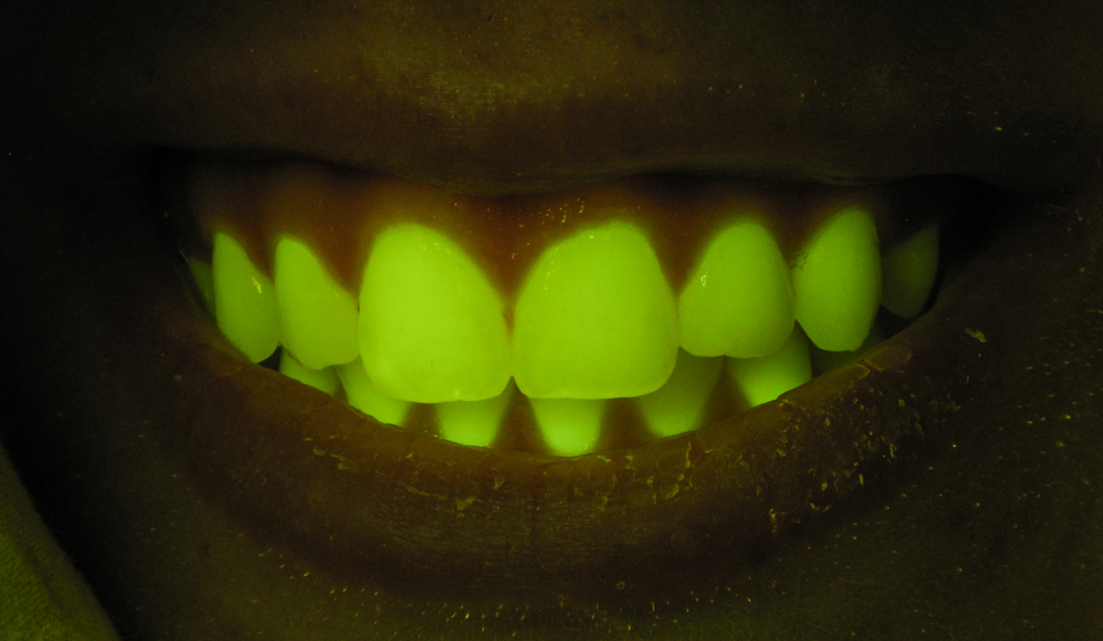 Does it Fluoresce? Your teeth do! (c) Charles Mazel