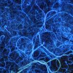 Dust bunny, fluorescence, ultraviolet excitation