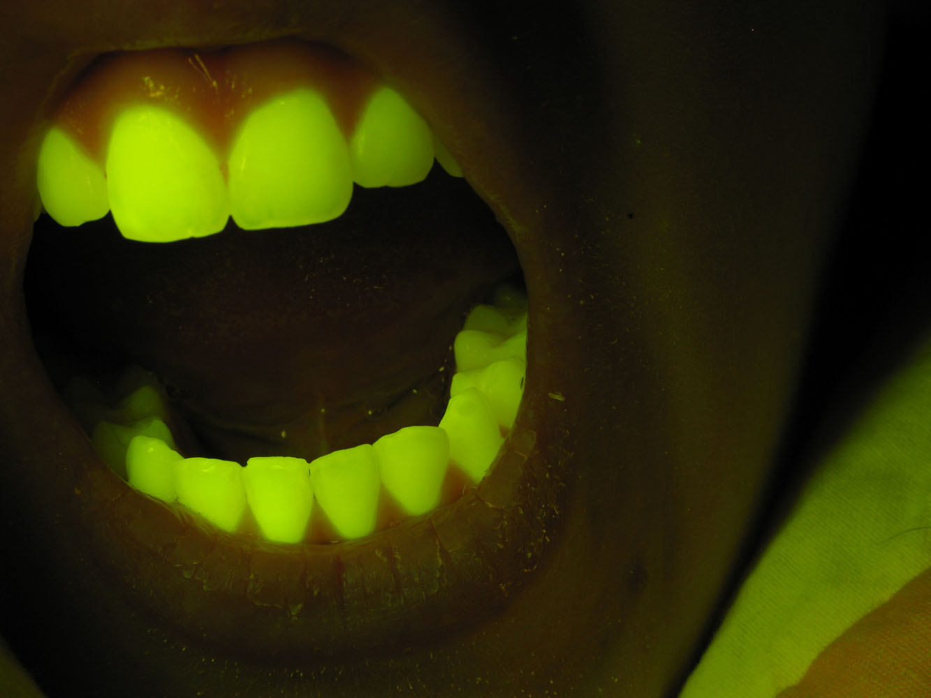 Teeth fluorescing